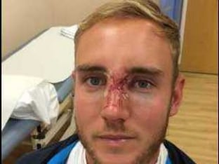 India in England: Injured Stuart Broad may Play Oval Test with Face Mask