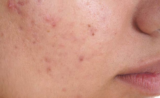 Skin Cancer Symptoms Treatments Causes Tests Preventions